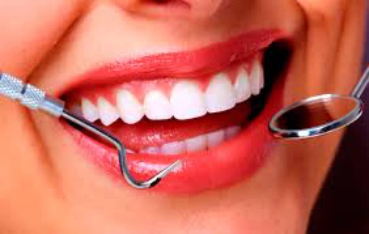 Estética dental por Odous Centro Odontológico