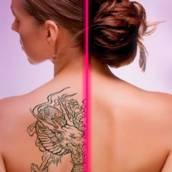 Remoção de tatuagem a Laser em Bauru e Região