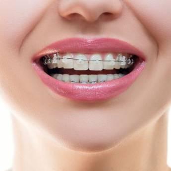 Comprar o produto de Aparelhos Estéticos Fixos em Odontologia pela empresa Odous Centro Odontológico em Foz do Iguaçu, PR por Solutudo