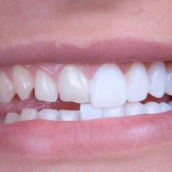 Comprar o produto de Lente de Contato Dental em Odontologia em Foz do Iguaçu, PR por Solutudo