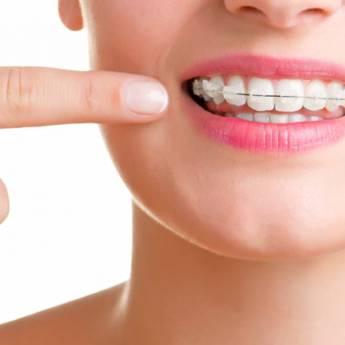 Comprar o produto de Aparelho estético fixo: Porcelana e Safira em Odontologia pela empresa Odous Centro Odontológico em Foz do Iguaçu, PR por Solutudo