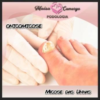 Comprar o produto de Tratamento Unhas com Micose em Podologia em Botucatu, SP por Solutudo