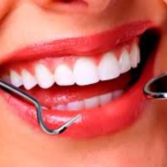 Comprar o produto de Estética dental em Odontologia pela empresa Odous Centro Odontológico em Foz do Iguaçu, PR por Solutudo