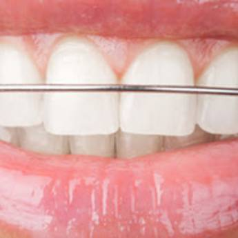 Comprar o produto de Aparelho Dental Móvel | Contenção em Odontologia pela empresa Odous Centro Odontológico em Foz do Iguaçu, PR por Solutudo