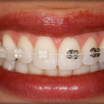 Comprar o produto de Ortodontia adulto em Outros Serviços em Botucatu, SP por Solutudo