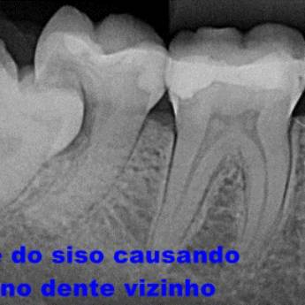 Comprar o produto de Cirurgia (Implante, Extrações...) em Odontologia em Botucatu, SP por Solutudo