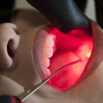 Comprar o produto de Laserterapia em Odontologia em Botucatu, SP por Solutudo