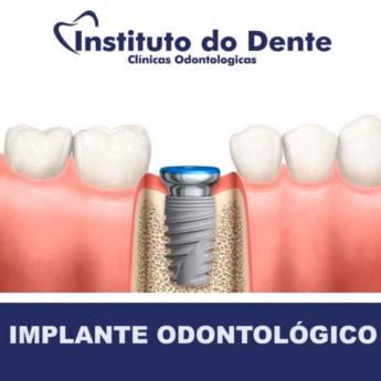 Comprar produto Implante  em Outros Serviços pela empresa Instituto do Dente Sul em Marília, SP