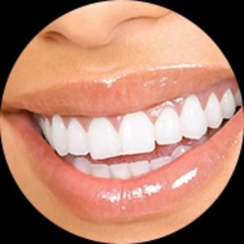 Comprar o produto de Implantodontia em Odontologia pela empresa Odous Centro Odontológico em Foz do Iguaçu, PR por Solutudo