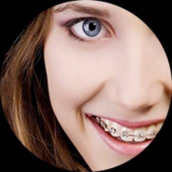 Comprar o produto de Ortodontia  em Odontologia pela empresa Odous Centro Odontológico em Foz do Iguaçu, PR por Solutudo