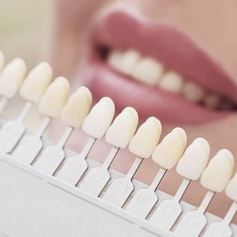 Comprar produto Prótese Dental em Odontologia pela empresa Odous Centro Odontológico em Foz do Iguaçu, PR