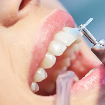 Comprar produto Limpeza em Odontologia pela empresa OdontoMeira em Foz do Iguaçu, PR