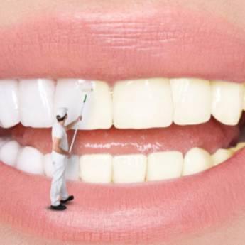 Comprar produto Clareamento Dental em Saúde Dental pela empresa Clínica de Ortodontia Dra. Eliana de Souza  em Araçatuba, SP