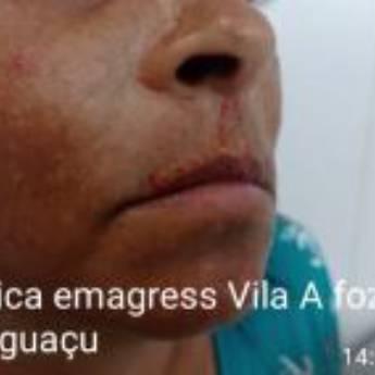 Comprar produto Skinbooster em Clínicas de Estética e Beleza pela empresa Clínica Emagress  em Foz do Iguaçu, PR