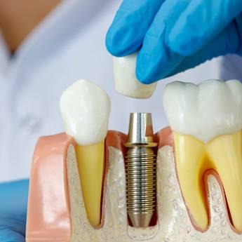 Comprar o produto de Implantes em Odontologia em Botucatu, SP por Solutudo