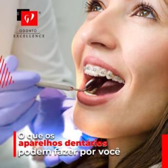 Comprar produto Os aparelhos dentários  em Odontologia pela empresa Odonto Excellence - Elaine R. da Silva CRO:110.721 CRO/SP:14.557 em Botucatu, SP