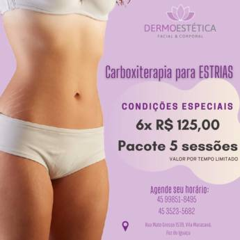 Comprar o produto de Carboxiterapia para Estrias - Pacote com 5 Sessões em Ofertas: Saúde e Beleza em Foz do Iguaçu, PR por Solutudo