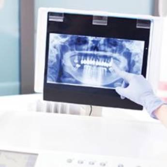 Comprar produto Seu exame totalmente digitalizado e com alta definição em Odontologia Digital pela empresa DPI Raio X Odontológico  em Botucatu, SP