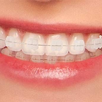 Comprar o produto de Aparelho Cerâmico em Odontologia em Foz do Iguaçu, PR por Solutudo