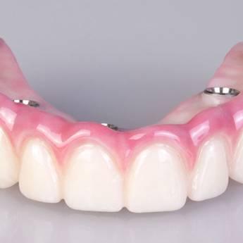 Comprar o produto de Prótese Protocolo em Odontologia em Foz do Iguaçu, PR por Solutudo