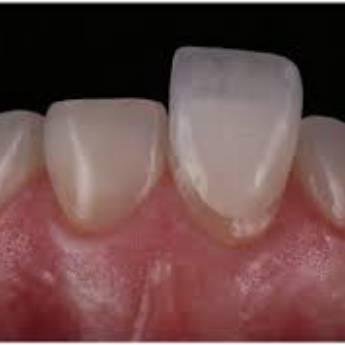 Comprar o produto de LENTES DE CONTATO BUCAL em Odontologia em Botucatu, SP por Solutudo