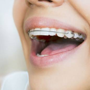 Comprar o produto de Aparelho removível em Odontologia pela empresa Odous Centro Odontológico em Foz do Iguaçu, PR por Solutudo