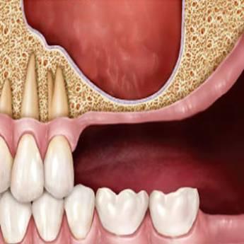 Comprar o produto de Sinus Lift em Odontologia em Foz do Iguaçu, PR por Solutudo