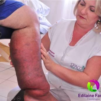 Comprar o produto de Tratamento de Edema, Lipedema e Linfedema  em Fisioterapia em Jundiaí, SP por Solutudo