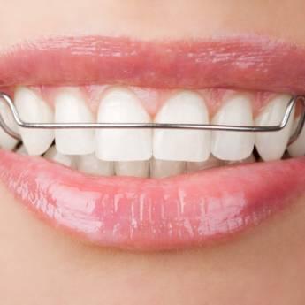 Comprar o produto de Aparelho Reposicionador de Mandíbula em Odontologia em Foz do Iguaçu, PR por Solutudo