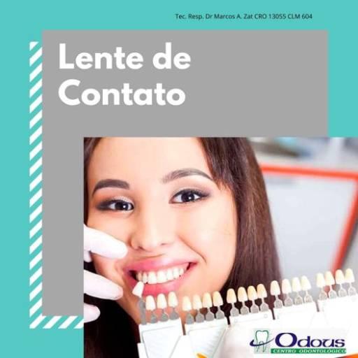 Restauração Estética Dental em Foz do Iguaçu, PR por Odous Centro Odontológico