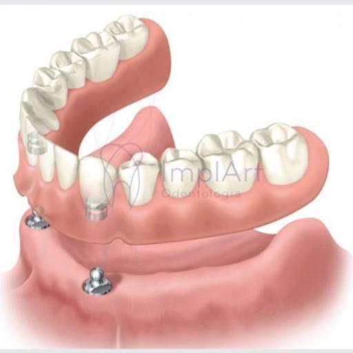 Comprar o produto de Prótese Com Sistema OVERDENTURE em Odontologia pela empresa Odous Centro Odontológico em Foz do Iguaçu, PR por Solutudo