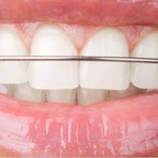 Comprar o produto de Aparelho Dental Móvel   Contenção em Odontologia pela empresa Odous Centro Odontológico em Foz do Iguaçu, PR por Solutudo