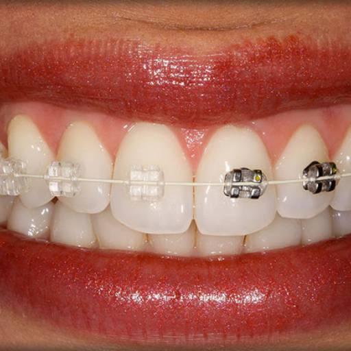 Comprar o produto de Ortodontia adulto em Outros Serviços pela empresa Dra Gabriela Antunes Silva CRO-SP 88092 em Botucatu, SP por Solutudo