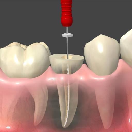 Comprar o produto de Endodontia (Tratamento de Canal) em Odontologia pela empresa Dra Gabriela Antunes Silva CRO-SP 88092 em Botucatu, SP por Solutudo