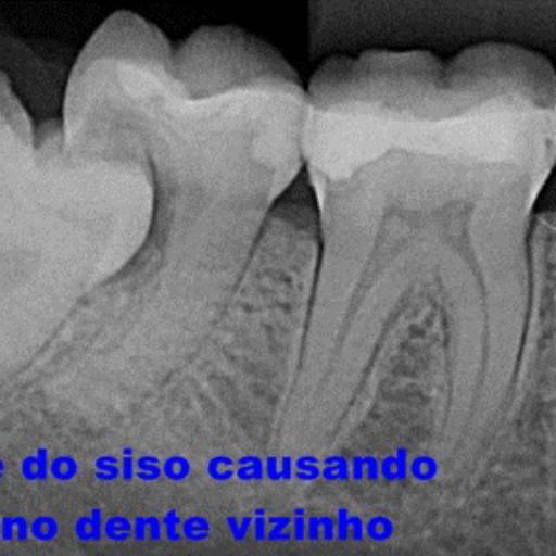 Comprar o produto de Cirurgia (Implante, Extrações...) em Odontologia pela empresa Dra Gabriela Antunes Silva CRO-SP 88092 em Botucatu, SP por Solutudo