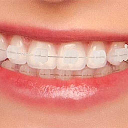 Comprar o produto de Aparelho Cerâmico em Odontologia pela empresa Odous Centro Odontológico em Foz do Iguaçu, PR por Solutudo