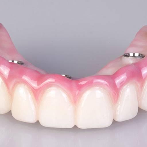Prótese Protocolo por Odous Centro Odontológico