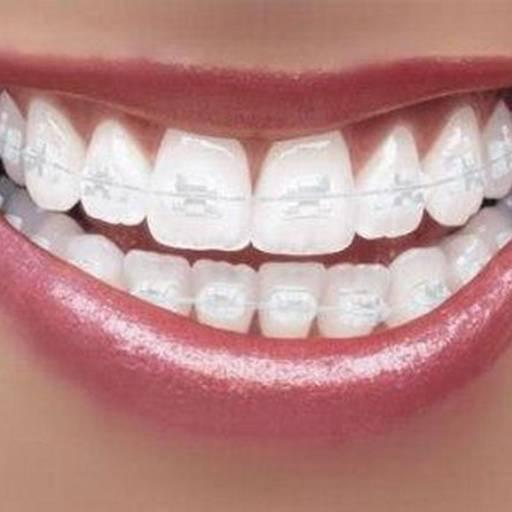 Comprar o produto de Aparelho transparente de safira em Odontologia pela empresa Odous Centro Odontológico em Foz do Iguaçu, PR por Solutudo