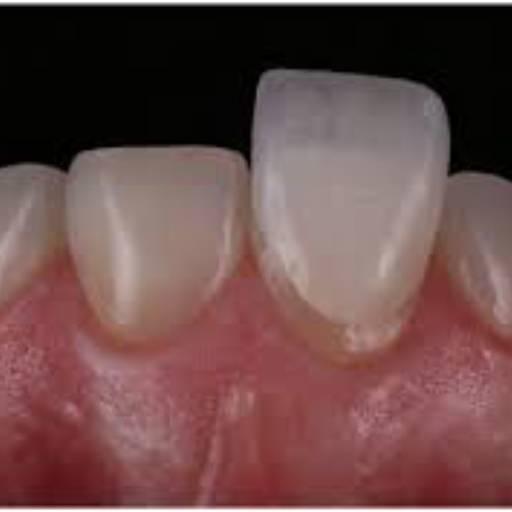 Comprar o produto de LENTES DE CONTATO BUCAL em Odontologia pela empresa Clinica Moreno & Joaquim em Botucatu, SP por Solutudo