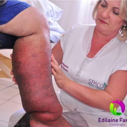 Tratamento de Edema, Lipedema e Linfedema  por Fisioterapia Edilaine Fantini